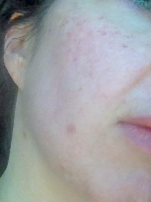 Here is my skin shortly after the IPL treatment. The solar lentigos darken before they flake off within about 10 days. Wearing foundation for the first few days made the treatment unnoticable.
