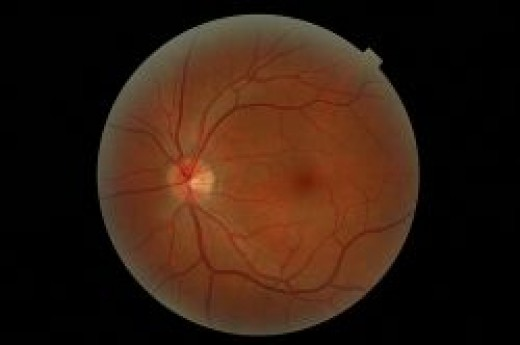 Neat photo of the eye's retina, not sure how this photo was taken though.