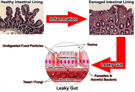 Leaky gut process explained